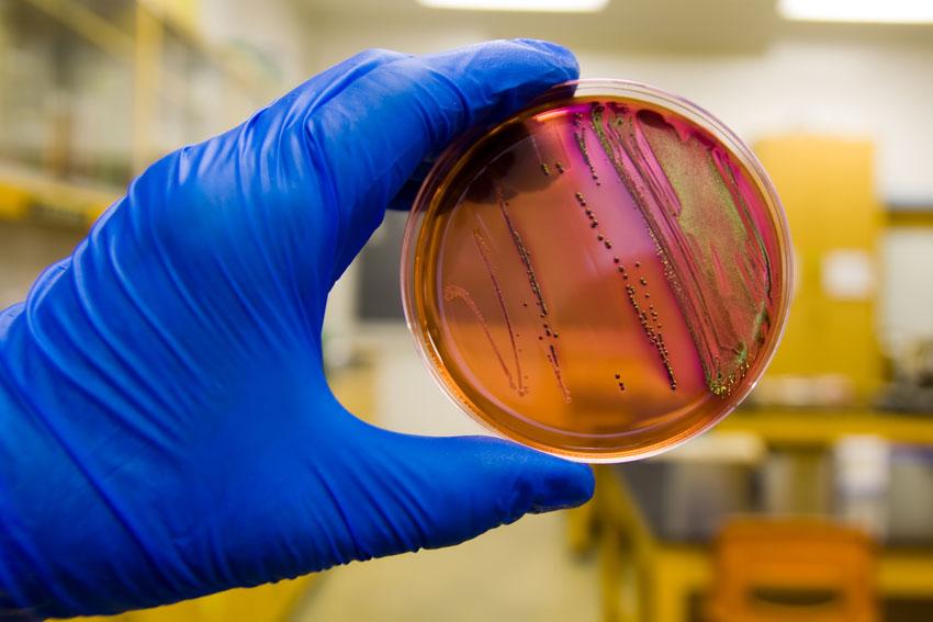 featured image Análise de E. coli em menos de 1 hora