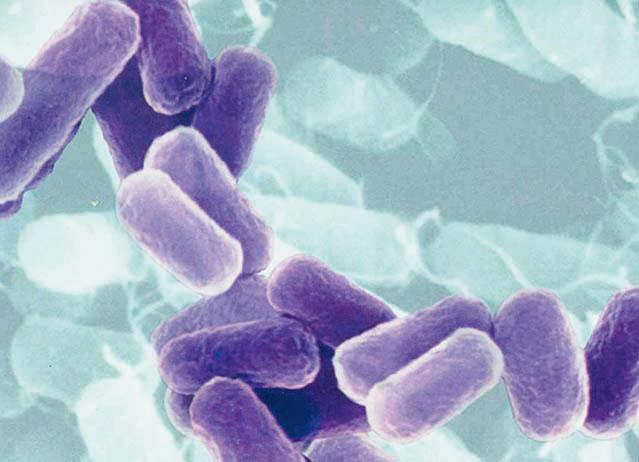 featured image Considerações sobre o padrão microbiológico para Bacillus cereus em leite em pó e outros produtos lácteos